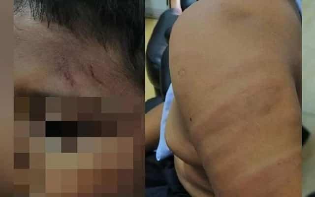 """Guru """"dera"""" pelajar hingga tinggal kesan teruk pada kulit, ini rupanya yang berlaku.."""